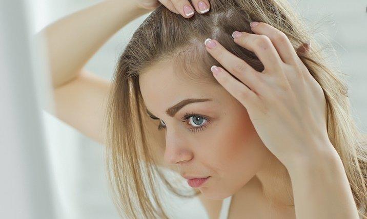 Saç dökülmesi nasıl engellenir