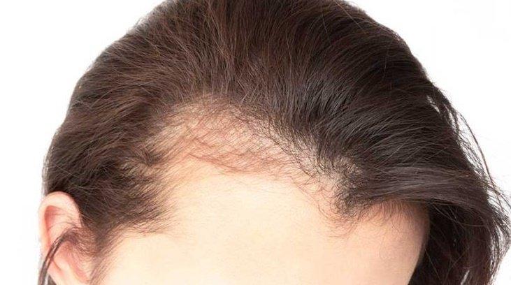 Kadınlarda saç dökülmesinin nedenleri