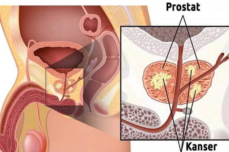 Prostat Kanseri Nedir, Belirtileri Nelerdir, Tedavisi Nasıl Yapılır?