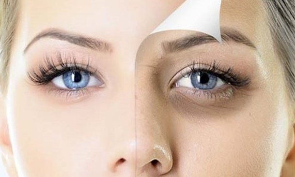 Göz Altı Morluğunun Oluşmasının Nedenleri ve Çözümleri