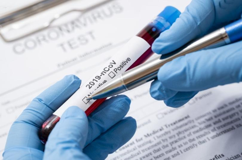 Coronavirus (Korona Virüs) Nedir?