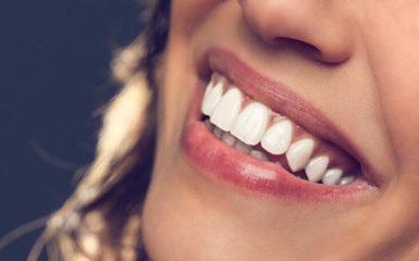 Güzel Bir Gülüşün Sırrı: En Etkili Diş Beyazlatma Yöntemleri