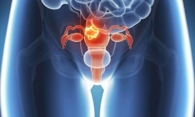 Rahim Kanseri Nedir, Rahim Kanserinin Belirtileri Nelerdir?