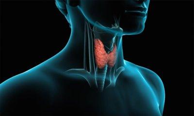Tiroid Kanserinin Nedenleri ve Tedavi Yöntemleri