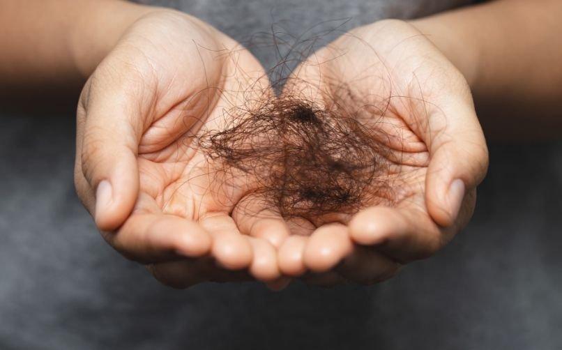 Saç Dökülmesi Nedenleri Nelerdir?