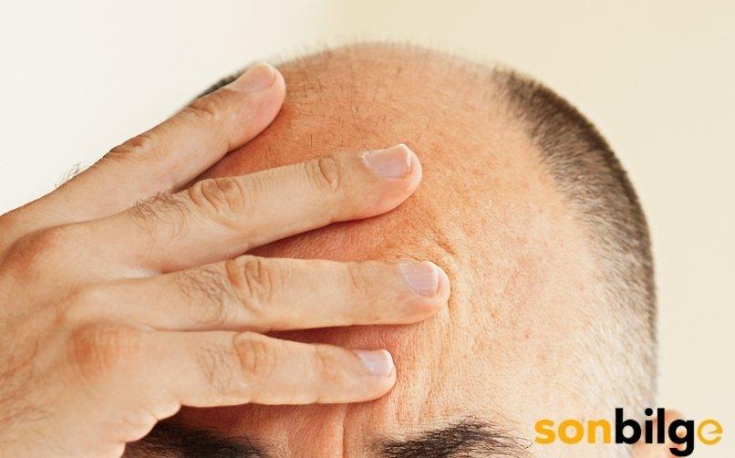 Erkek Tipi Saç Dökülmesi (AGA) Nedenleri ve Çözümleri