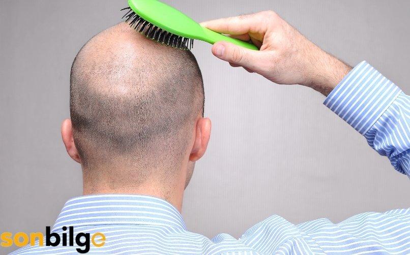 Erkek Tipi Genetik Saç Dökülmesi (AGA) Nedir?
