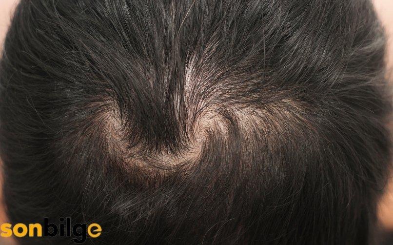 Erkek Tipi Saç Dökülmesi Nasıl Anlaşılır?