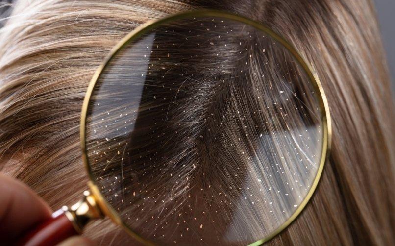 Saçta Kepek Oluşumu Ve Çözümleri