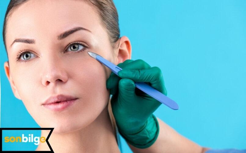 Göz Kapağı Ameliyatı Kimlere Yapılır?