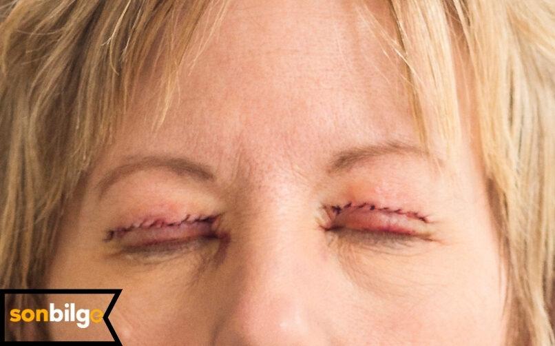 Göz Kapağı Düşüklüğü Ameliyatının Riskleri Nelerdir?