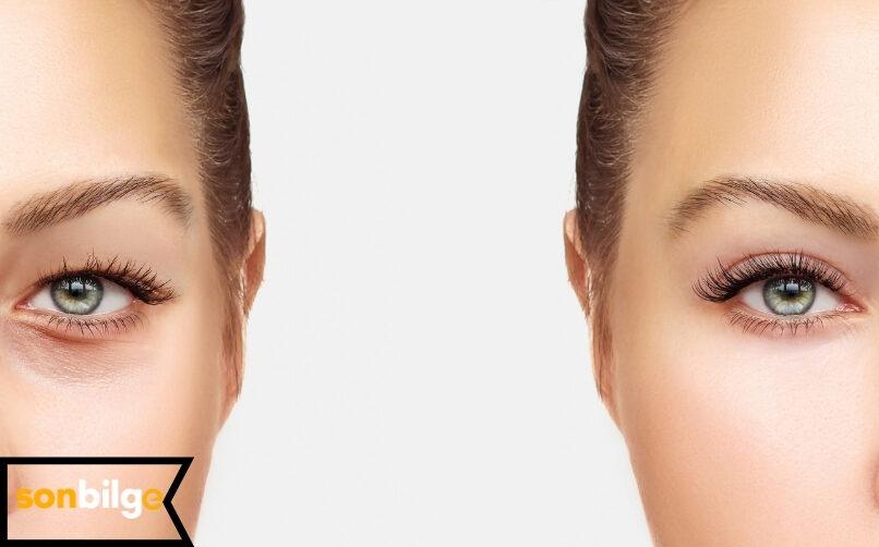 Blefaroplasti (Göz Kapağı Estetiği) Ameliyatı Kalıcı Mıdır?