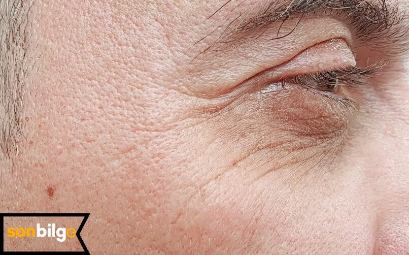 Göz Kapağı Düşüklüğü (Blefaroplasti) Nedir?